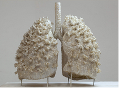 PP Yousuf lungs